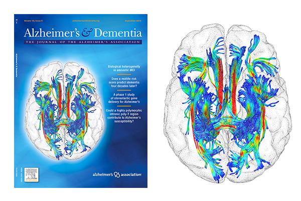 Illustration – crédit photo © Michel Thiebaut de Schotten (Institut du Cerveau - ICM) et Harald Hampel (IM2A – Institut du Cerveau - ICM)