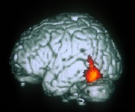 equipe neurologie expérimentale