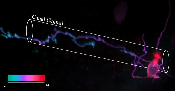 Légende : Un marquage mosaique permet d'identifier la morphologie d'un neurone contactant le liquide céphalorachidien dans la moelle épinière de la larve du poisson zèbre. La cellule comporte une brosse de microvilli (rouge – rose) qui baignent dans la lumière du canal central et un axone (violet – bleu) ascendant dans la moelle épinière ventrale. © Caleb Stokes et Claire Wyart – ICM  Illustration – crédit photo © Caleb Stokes et Claire Wyart – ICM