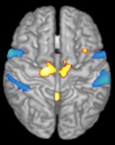 Activation en IRM fonctionnelle de la région locomotrice du tronc cérébral : tâche d'imagination de la marche chez des sujets sains