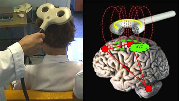 Stimulation Magnétique Transcranienne