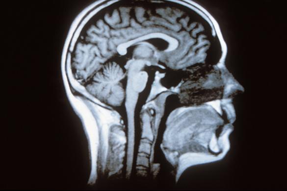 Coupe sagittale du cerveau humain