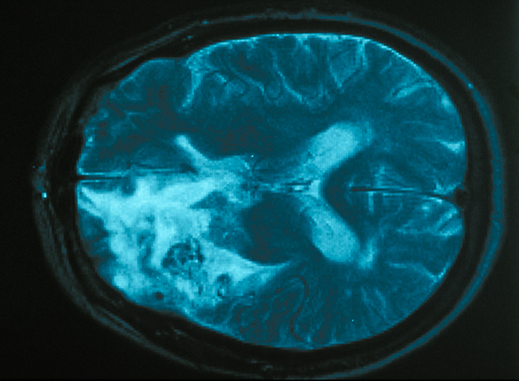 Belin, Marie-Françoise_Gliome, tumor of the central nervous system © Institut du Cerveau - ICM