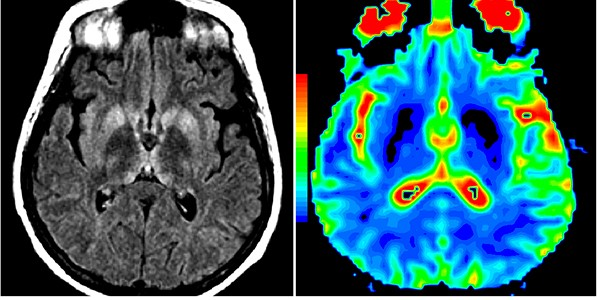 IRM cérébrale d'un patient atteint de la maladie Creutzfeldt-Jakob