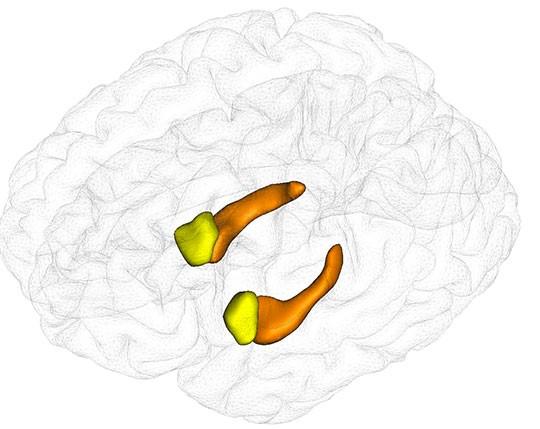 Figure : Segmentation automatique des hippocampes (orange) et des amygdales (jaune) à partir de données d'imagerie par résonance magnétique (IRM) grâce au logiciel SACHA. © Ludovic Fillon, Marie Chupin, Equipe ARAMIS