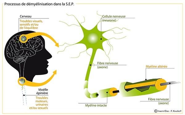 Sclérose en plaques : schéma d'un processus de démyélinisation de la sclérose en plaques (SEP). © Inserm/Koulikoff, Frédérique