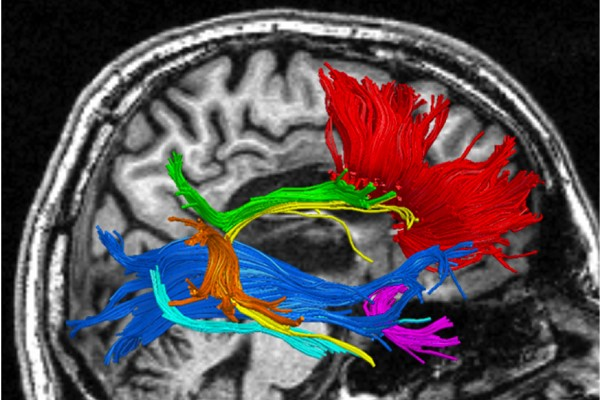Patient brain MRI revealed a complete destruction of the posterior portion of the corpus callosum which connects the 2 hemispheres (red fibers).