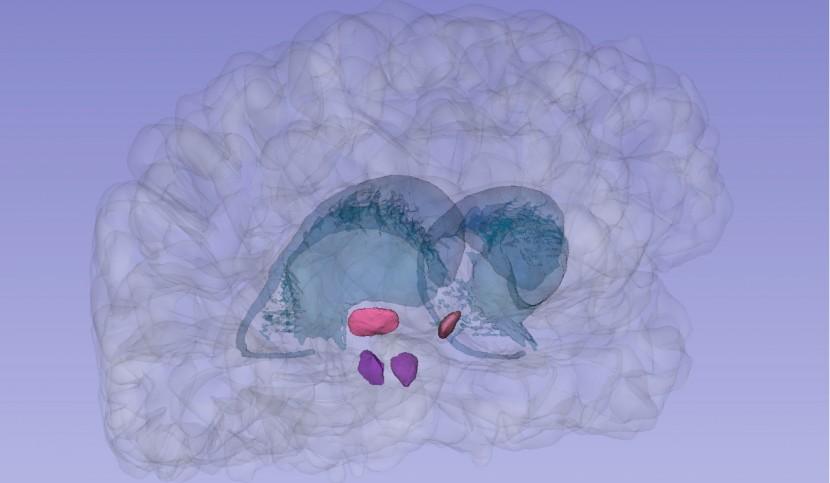 Image 3D des noyaux subthalamique et pédonculopontin