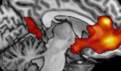 Photo du cerveau