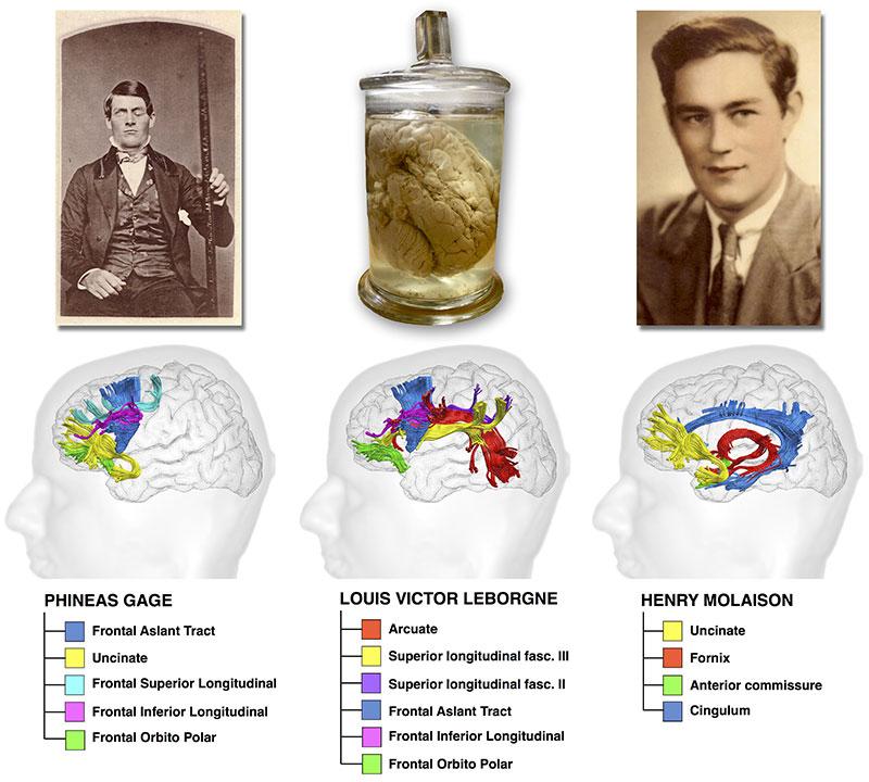 Image : Les voies du cerveau endommagées dans les trois cas historiques étudiés