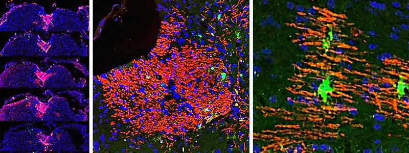 Image : Réparer les lésions de la myéline grâce aux cellules de la peau
