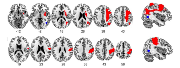 Reconstruction des lésions du cerveau (en rouge) pour deux des patients souffrant de négligence visuelle. La zone en bleue correspond à la zone responsable de la perception du mouvement et ne présente aucune lésion chez les patients étudiés.