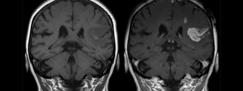 Tumeurs cérébrales : un diagnostic en une journée