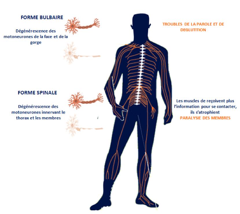 dégénérescence des motoneurones - maladie de charcot (SLA)