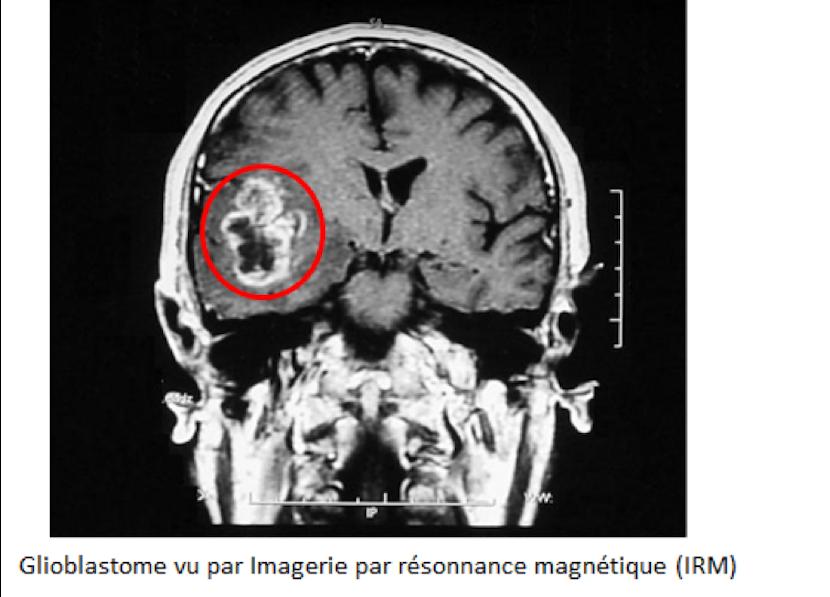 diagnostic IRM tumeur cérébrale