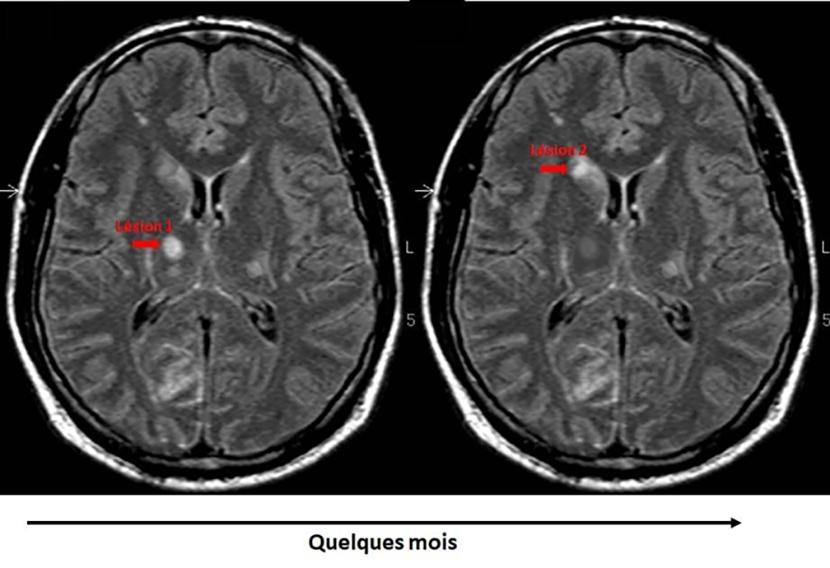 diagnostic sclérose en plaques