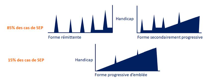 formes de la sclérose en plaques