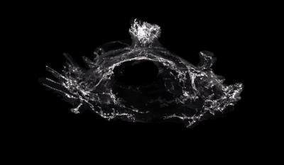 Cartographie des vaisseaux lymphatiques vertébraux en 3D