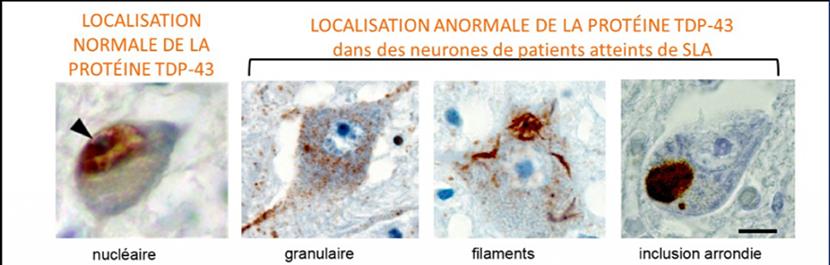 maladie de charcot SLA mécanisme biologique
