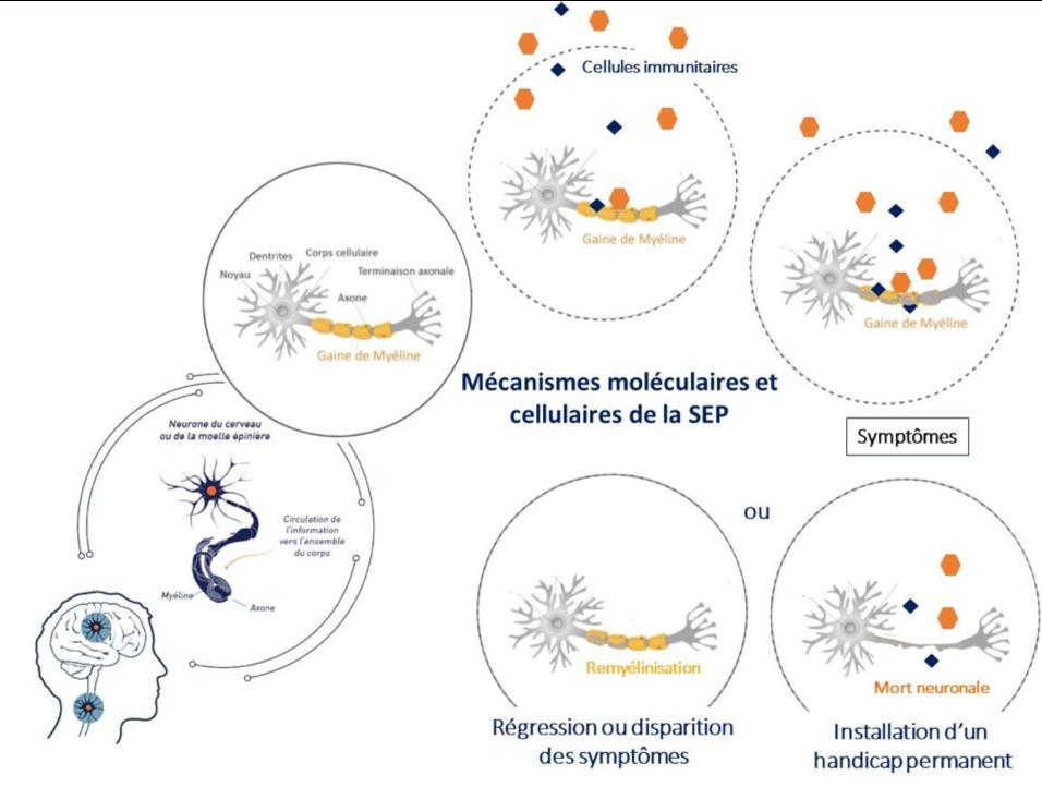 mécanisme sclerose en plaques