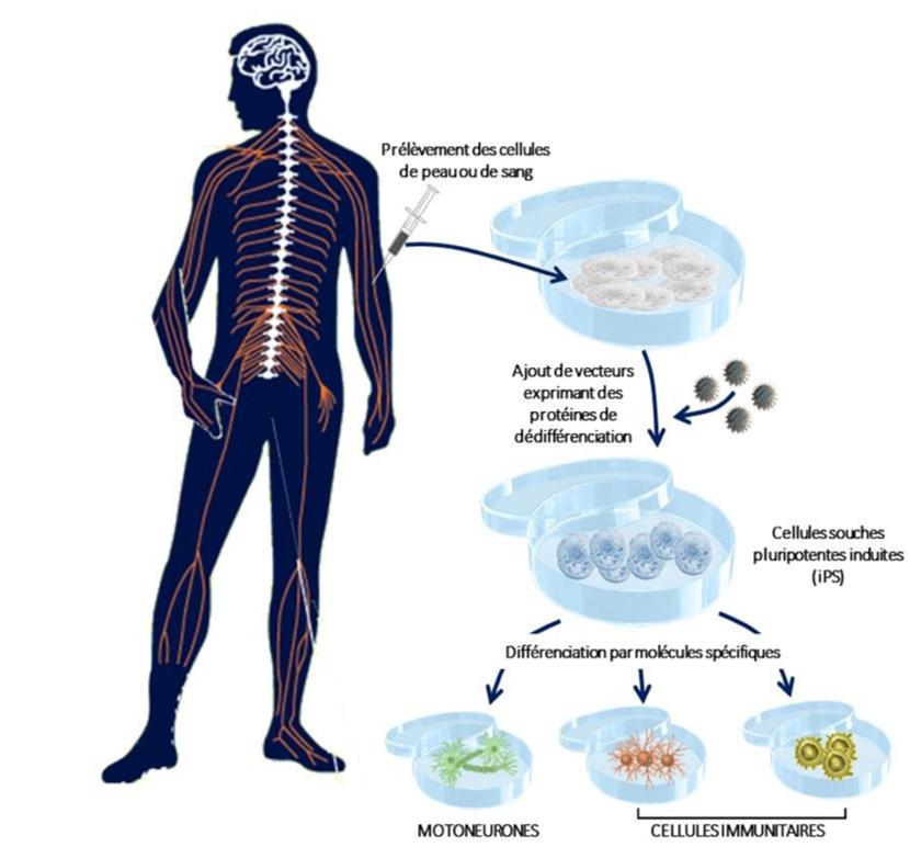 mutation cellule nerveuse sla sclérose latérale amyotrophique