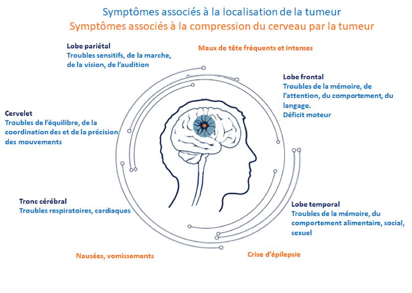 symptomes tumeur cerveau