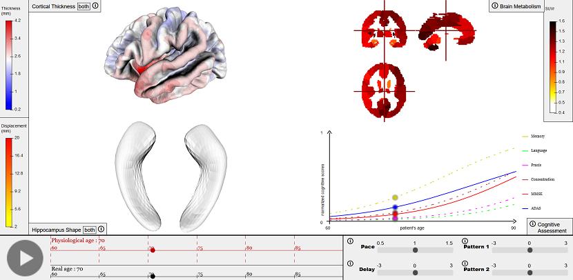 d'évaluer les performances du modèle numérique sur la prédiction d'évolution de la maladie en conditions réelles