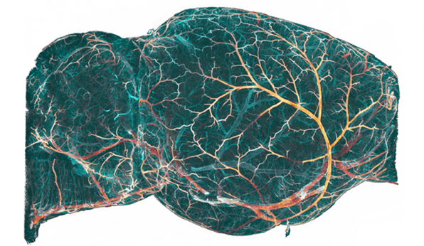 Mouse brain imaged in 3D by light sheet microscopy