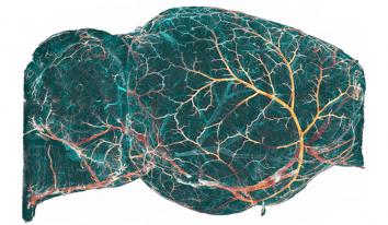 Cerveau imagé en 3D par microscopie en feuillet de lumière