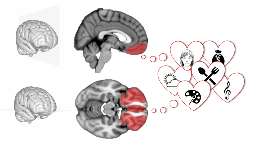 Four core properties of the human brain valuation system demonstrated in intracranial signals