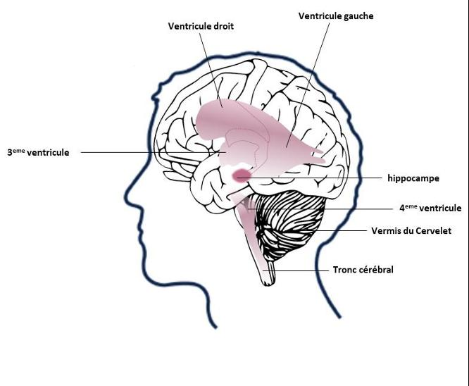 anomalies cérébrales autisme
