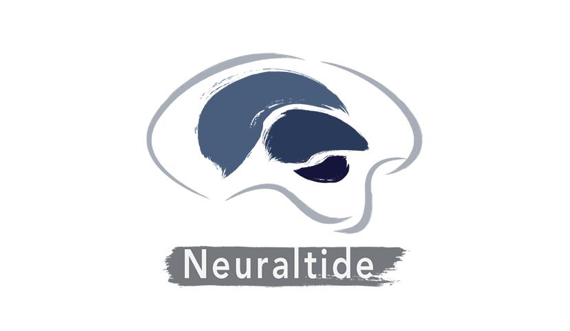 Neuraltide_IPEPS