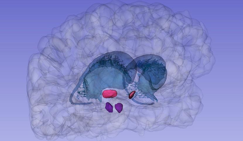 Illustration 3D des noyaux subthalamique