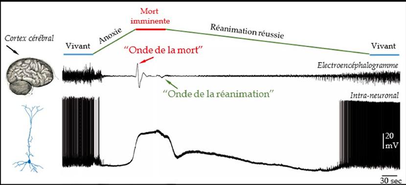 électrophysiologie - onde de la mort