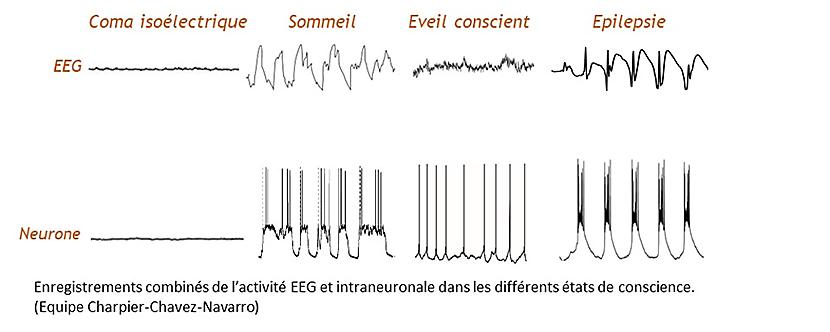 électrophysiologie - ondes lentes