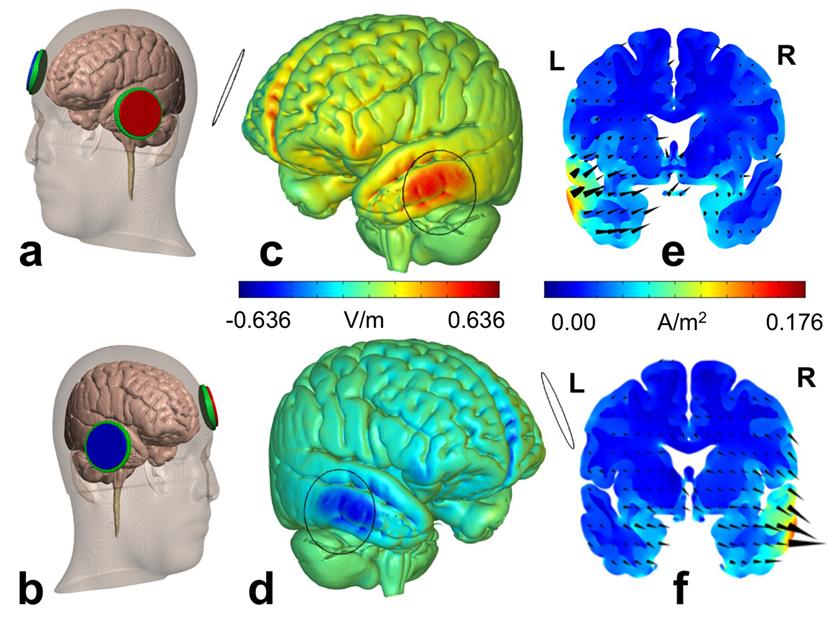 Distribution du courant électrique dans le cerveau pour deux ensembles donnés de paramètres de tDCS.
