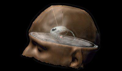 Parkinson stimulation cérébrale profonde