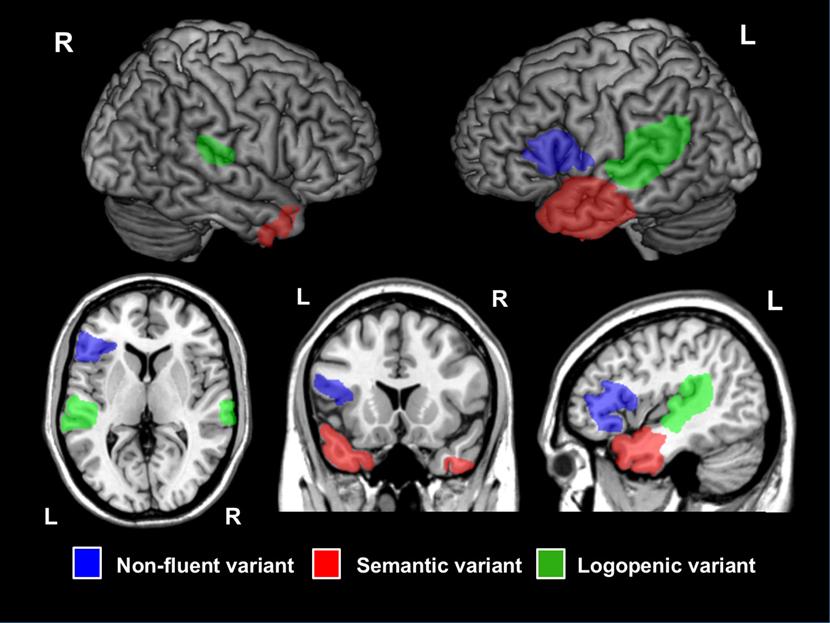 affectées chez les patients atteints d'aphasie progressive primaire (APP), représentées sur un cerveau standard. Les régions spécifiques à chaque variante de l'APP sont indiquées par des couleurs différentes