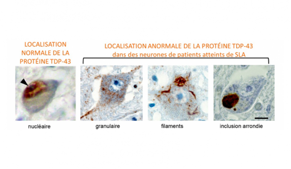 maladie-de-charcot-sla-mcanisme-biologique