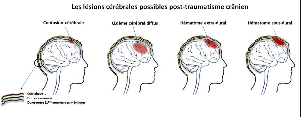 lésions cérébrales traumatisme cranien